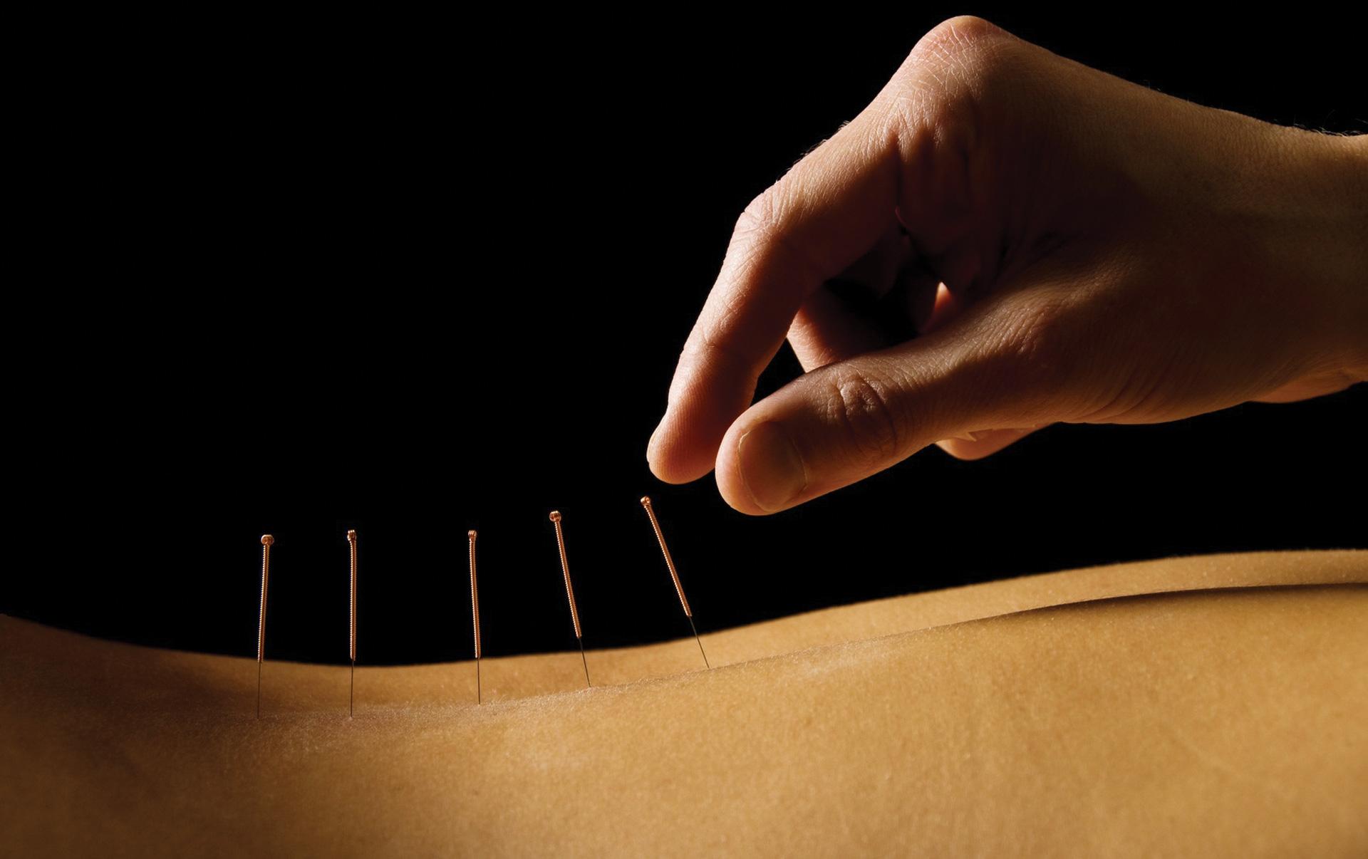 images-acupuncture